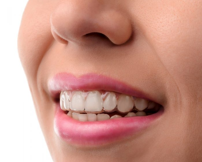 closeup of clear aligners