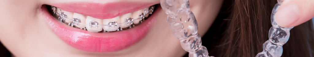 Braces and aligners